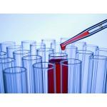 Medisch onderzoek naar het gebruik van steroïden